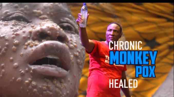 Woman Miraculously Healed Of Monkey Pox at Prophet Fufeyin's Church [Watch Video]