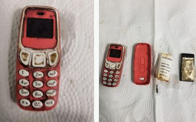Man To Undergo Surgery After Swallowing An Entire Nokia 3310 Phone